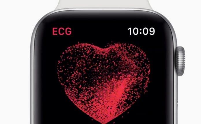 como hacer ecg apple watch